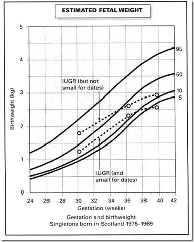 Mengukur Pertumbuhan Bayi Tak Cuma Lewat Berat dan Panjang Badan. Apa Lagi?